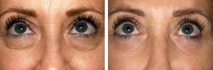 Блефаропластика - фото до и после